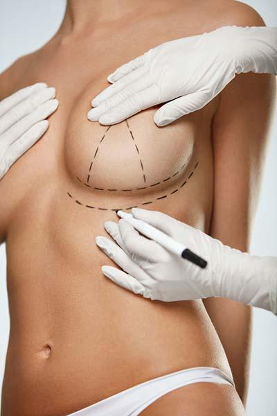 Breast Implants Nyc