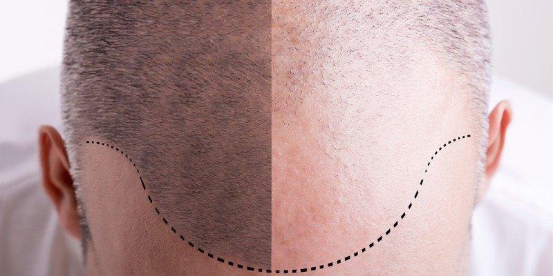 hair transplant nyc