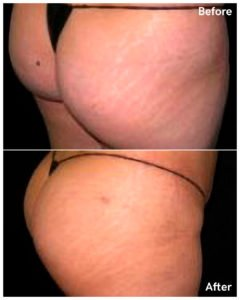 buttock enlargement nyc