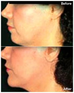chin augmentation nyc