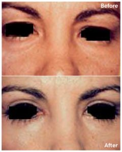 eyelid surgery nyc