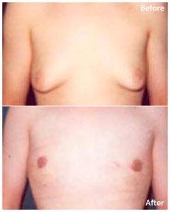 gynecomastia surgery nyc