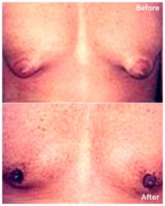 gynecomastia male breast reduction in nyc