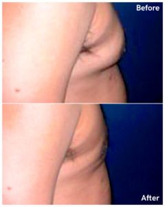 male breast reduction nyc
