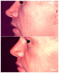 Rinoplastia before and after