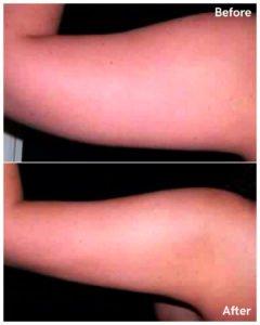Liposuction arms