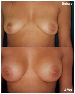 breast augmentation dr lefkovits