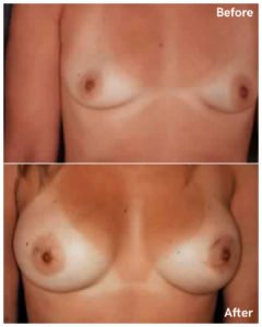 Breast augmentation in manhattan