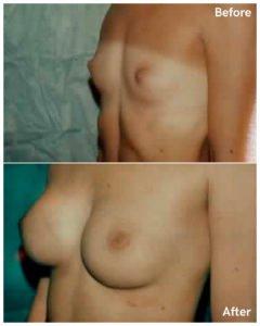 breast augmentation plastic surgery
