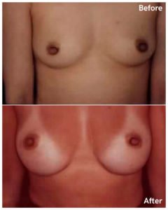 breast augmentation nyc