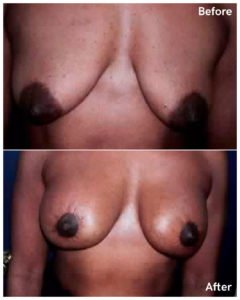 Breast Lift nyc