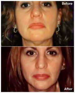 liposuction neck before and after