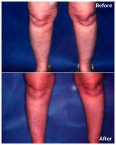 liposuction calves