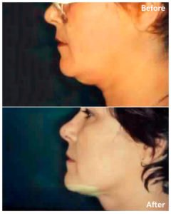 neck lipo before and after in nyc