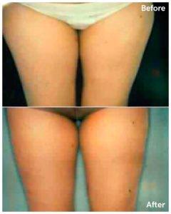 liposuction of thigh