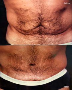 Male Tummy Tuck NYC