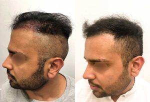 Hair Transplantation in NYC