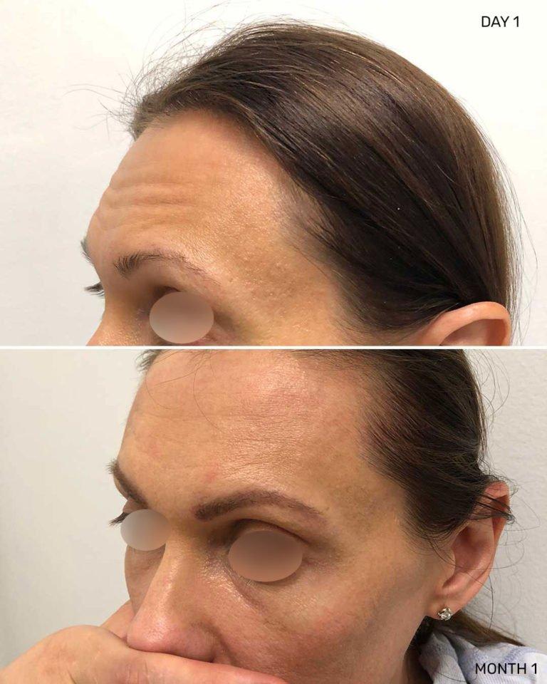 Eyebrow Restoration in NYC