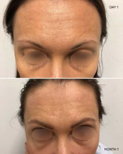 Eyebrow transplant 4 months after