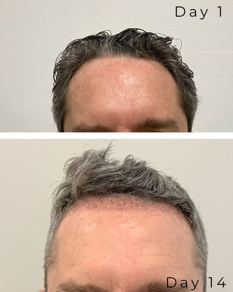 Hair Restoration before 2300 grafts