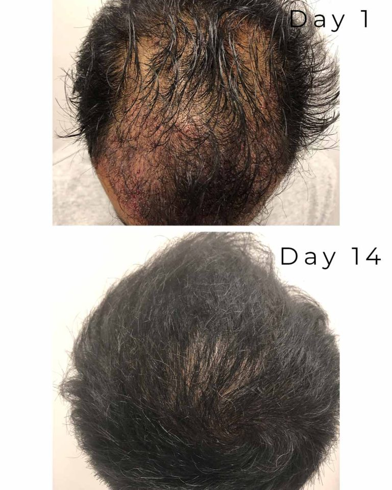 great results hair restoration
