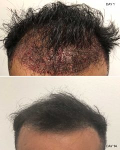 Hair Restoration results of 28000 grafts
