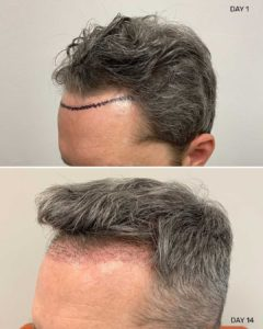 Hairline Hair Restoration Before and after