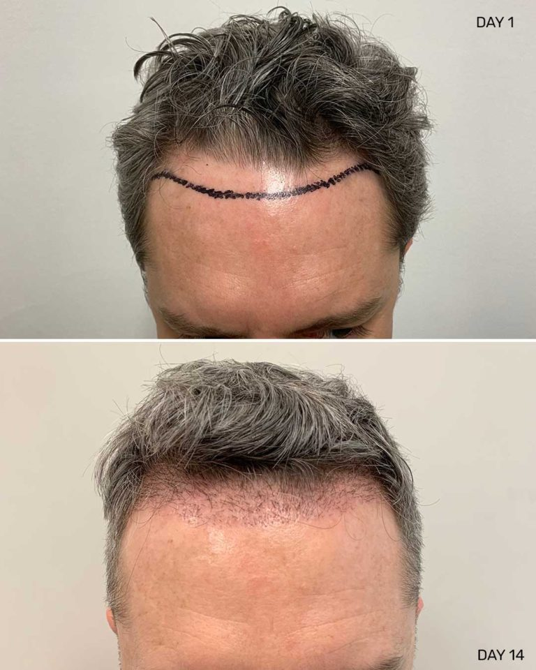 Front view of hair restoration procedure in New York City