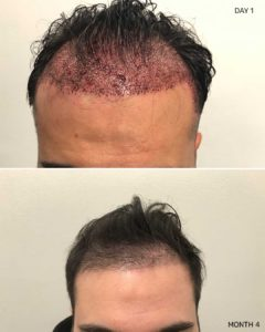 Hair Restoration NYC