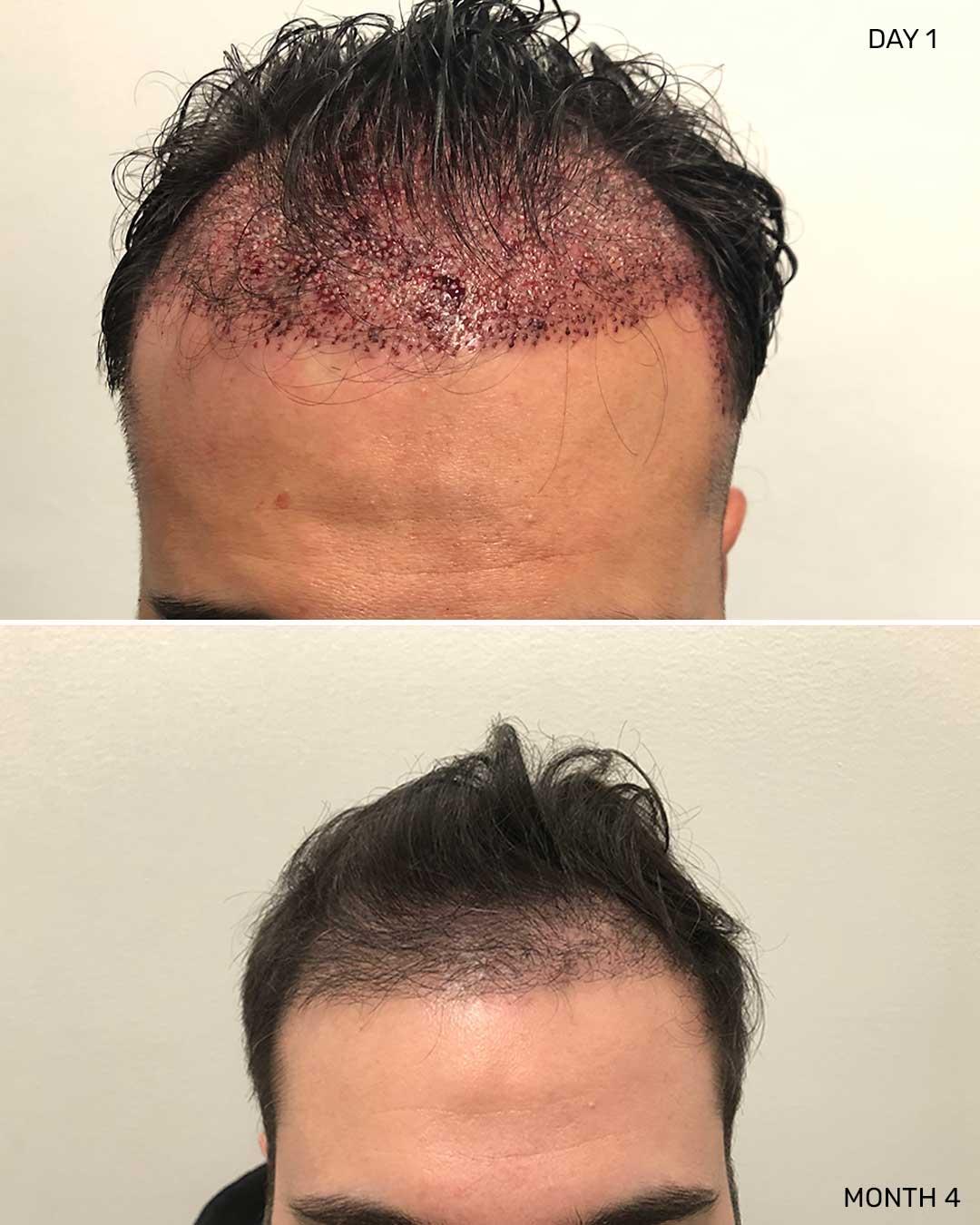 Hair Restoration NYC