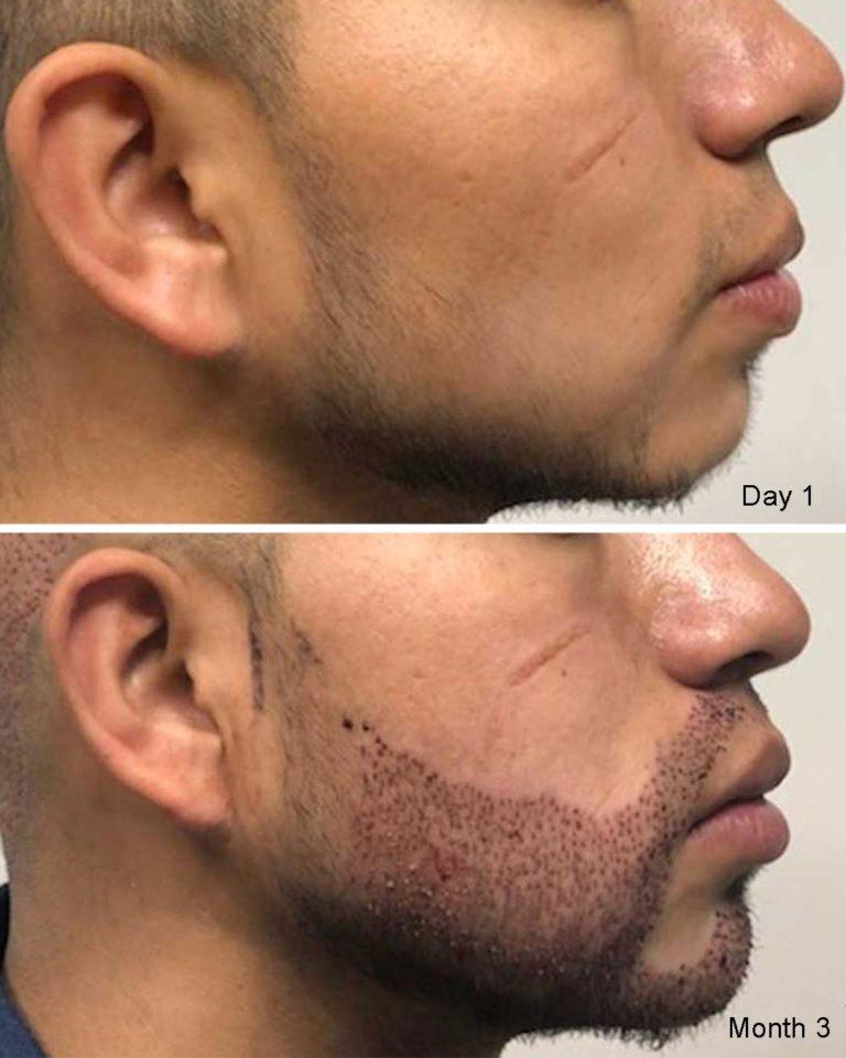1300 grafts beard and mustache restoration