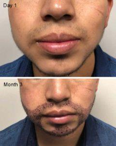 Mustache Restoration