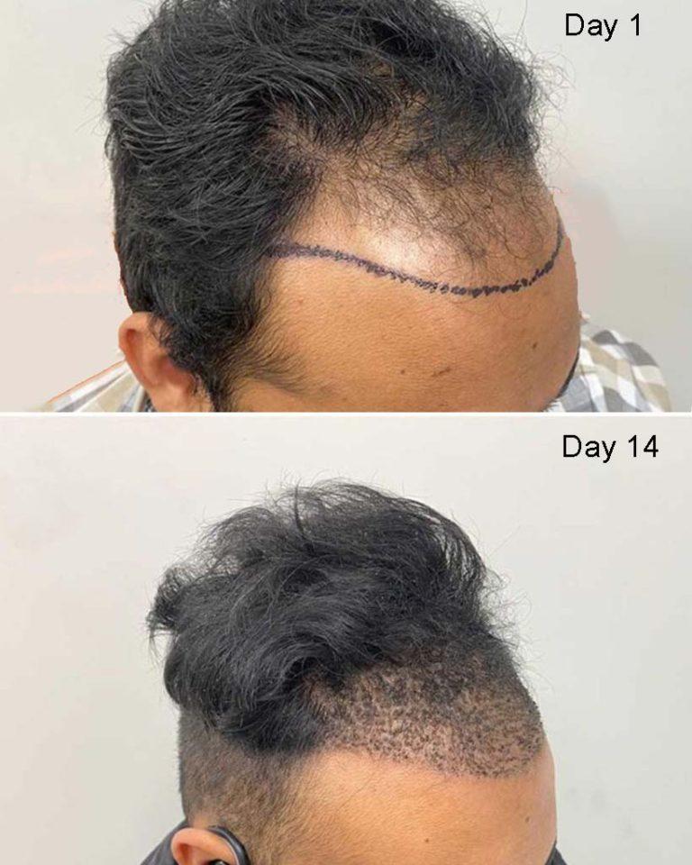 Hair Restoration 14 day progress