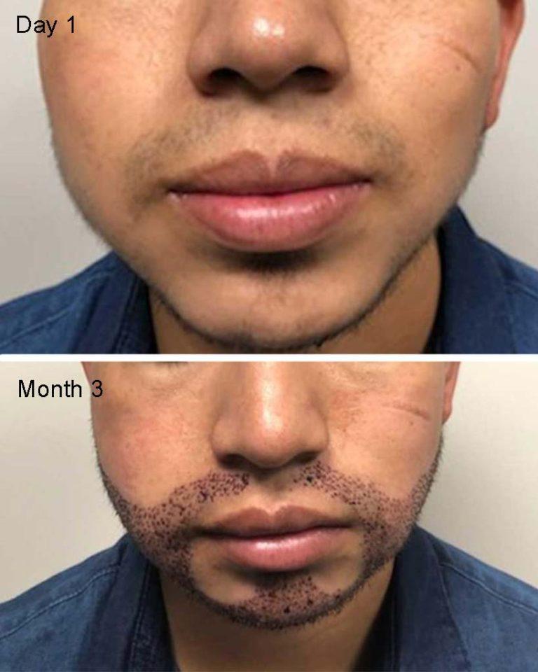 Beard and Mustache hair restoration