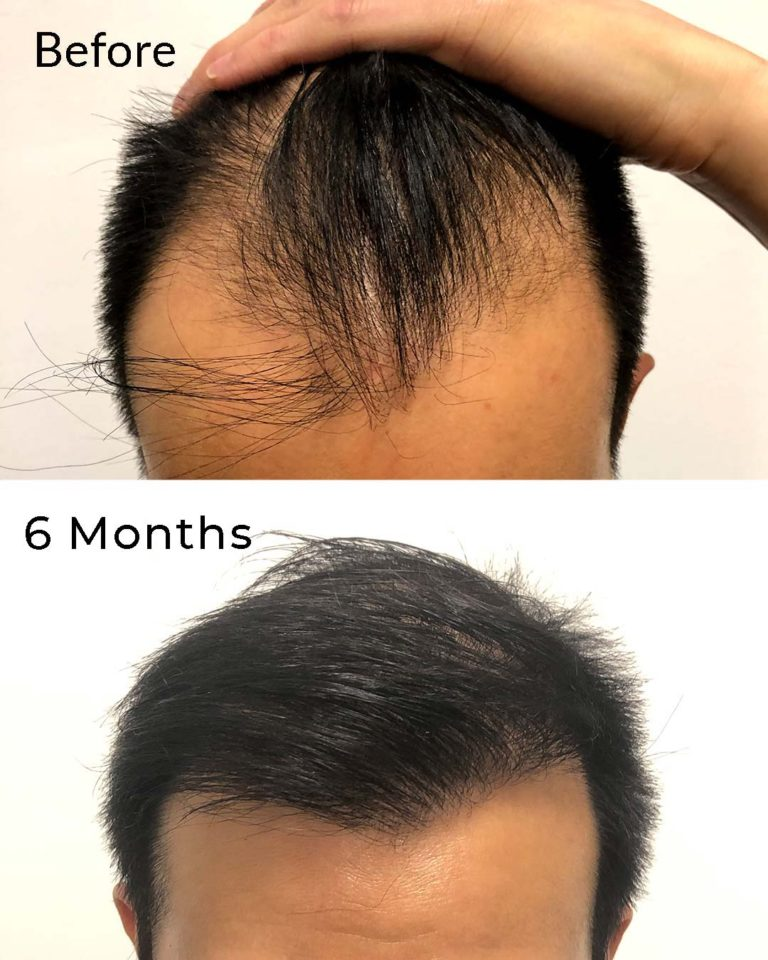 Hair Transplant nyc cost