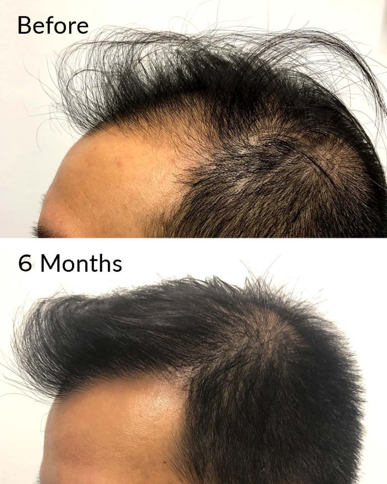 Hair Restoration Cost NYC