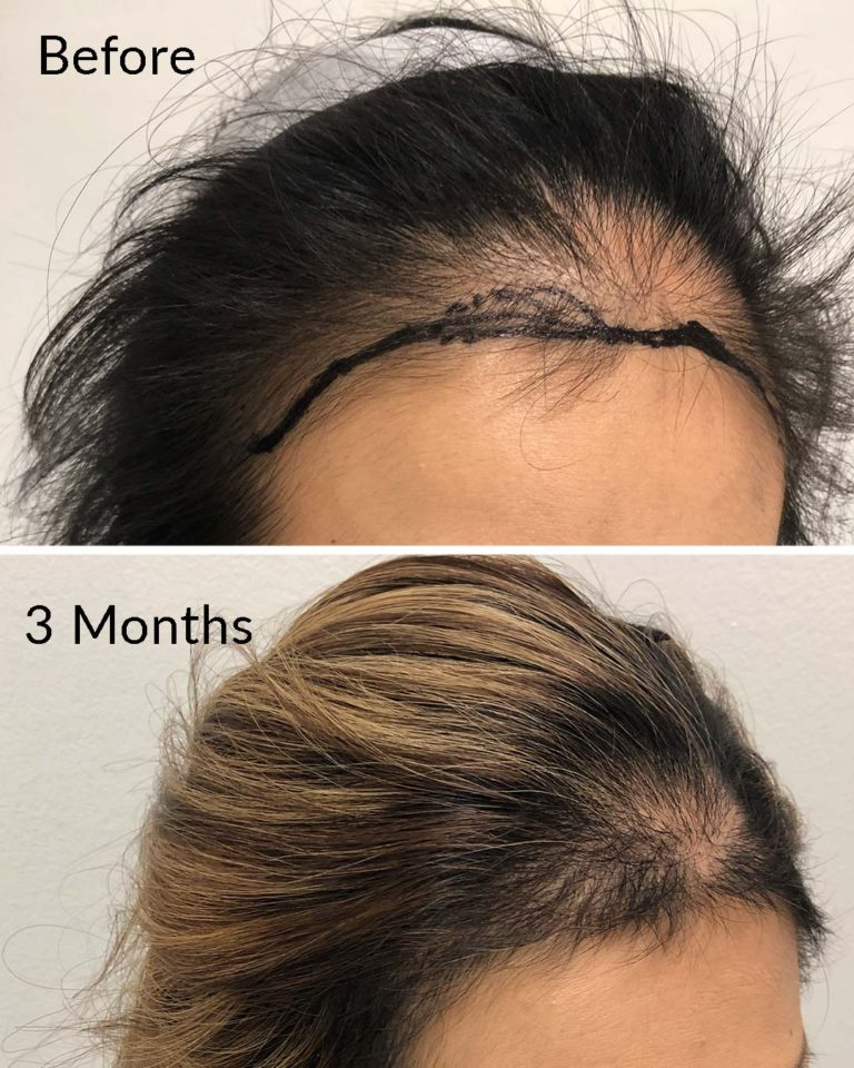 Hair Restoration for women nyc