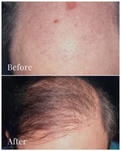 Amazing hair transplant results
