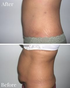 Tummy Tuck Before After Side View