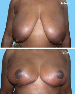 Breast Reduction Dr Lefkovits